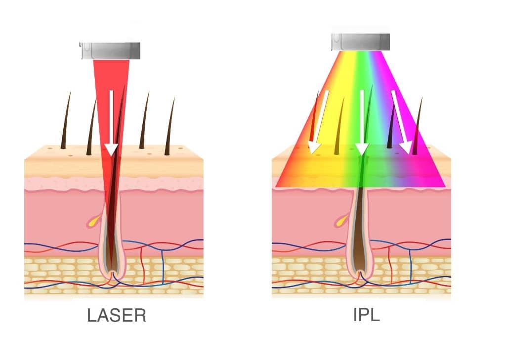 depiladora laser vs ipl